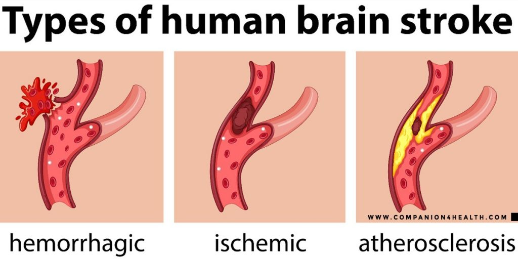 Brain Stroke: Everything you need to know - Companion4health.com