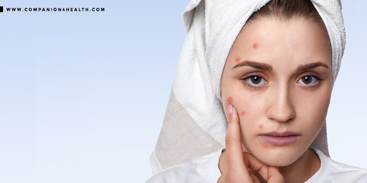 Skin problems: Everything you need to know - Companion4health.com